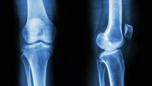 Stiže revolucija u liječenju prijeloma kostiju
