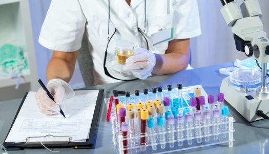 U Genosu otkrili put kojim će se umanjiti rizik od ateroskleroze